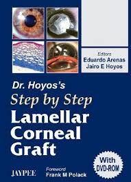 DR.HOYOS' STEP BY STEP LAMELLAR CORNEAL GRAFT WITH DVD-ROM